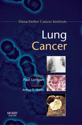 Lung Cancer: Dana-Farber Cancer Institute Handbook, 1e (Dana-Farber Cancer Institute Handbooks) - Arthur T. Skarin MD FACP FCCP; Paul Lorigan MB FRCP