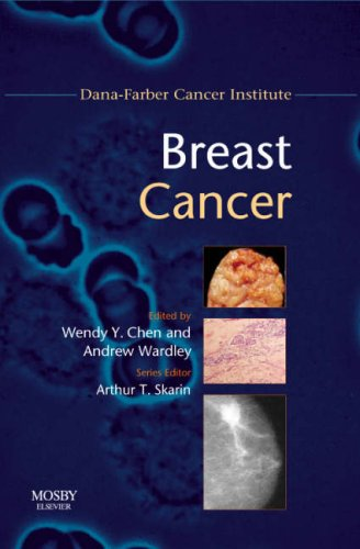 Breast Cancer: Dana-Farber Cancer Institute Handbook, 1e (Dana-Farber Cancer Institute Handbooks) - Arthur T. Skarin MD FACP FCCP; Wendy Y. Chen MD MPH; Andrew M. Wardley MBChB MRCP MSc MD CCST FRCP