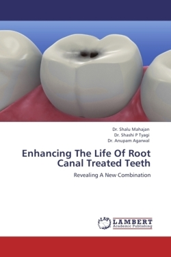 Enhancing The Life Of Root Canal Treated Teeth - Mahajan, Dr. Shalu / Tyagi, Dr. Shashi P / Agarwal, Dr. Anupam