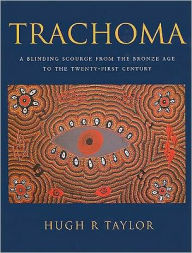 Trachoma: A Blinding Scourge from the Bronze Age to the Twenty-First Century - Hugh R. Taylor