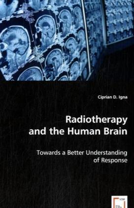 Radiotherapy and the Human Brain - Towards a Better Understanding of Response