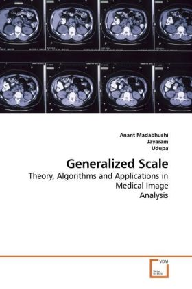 Generalized Scale - Theory, Algorithms and Applications in Medical Image Analysis