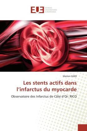 Les stents actifs dans l'infarctus du myocarde - Observatoire des Infarctus de Côte d'Or: RICO - Ghidi, Marion